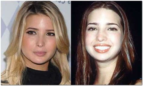 Does Ivanka An Mba by Did Ivanka Plastic Surgery Parenting Tips