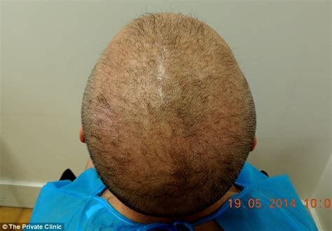 transplant hair from chest to head men can have hair transplants using hair from their chest