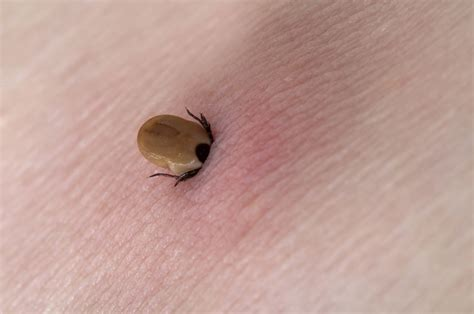 tick in skin when a tick bites you do not pull it crush it or smear it with something therapy