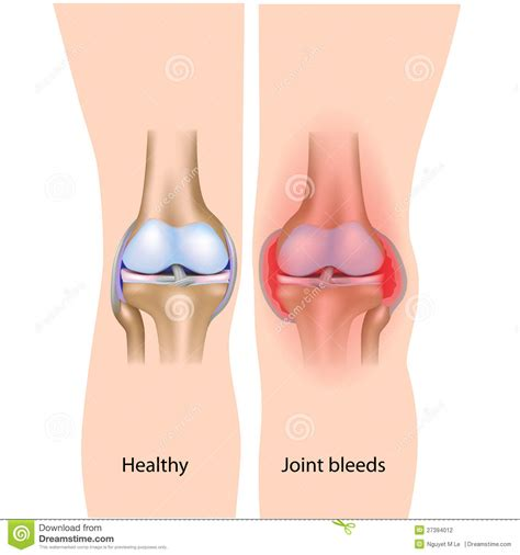 below knee utation the effects that hemophilia on the are if you h