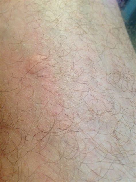 can chiggers live in your bed can chiggers live in your bed 28 images what are