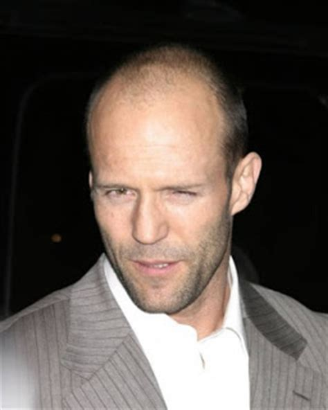 is donnie wahlberg bald the gallery for gt matt damon hair transplant