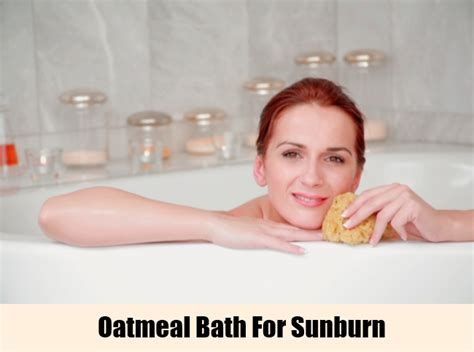 Sunburn Shower by 5 Home Remedies For Sunburn Treatments Cure For