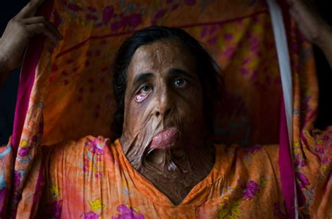 burn victim meaning muslim throws acid in his own daughter s face then