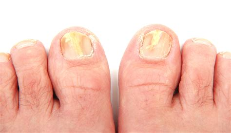 Toe Nail Care by Laser Toenail Fungus Treatment Associated Podiatrists