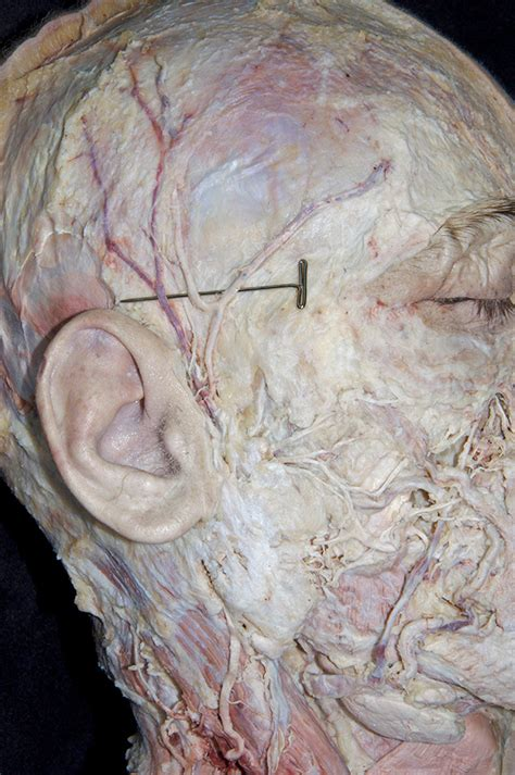 Temporal Bone Dissection Guide and neck