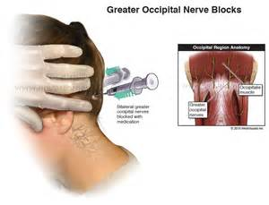 150 000 for occipital neuralgia amp ligament laxity from car wreck
