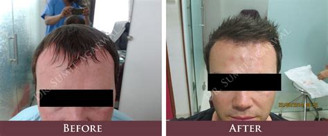 rolando model hair transplant testimonials reviews about hair transplant cost before and after how many grafts what