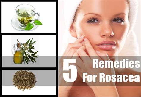 top 5 herbal remedies for rosacea rosacea treatment
