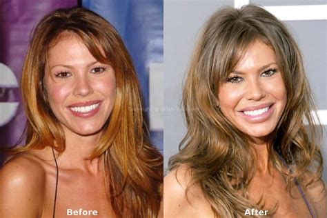 nikki cox before and after plastic surgery nikki cox plastic surgery the ultimate career killer