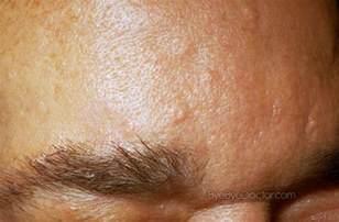 sebaceous hyperplasia treatment at home sebaceous hyperplasia treatment removal pictures
