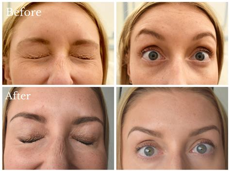 how long does botox last doctor answers tips realself botox explained with dr tan harley street md
