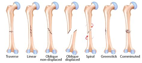 pattern name and classification the orthopedic institute at southwest health types of