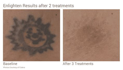 seattle tattoo removal removal in seattle at well arts