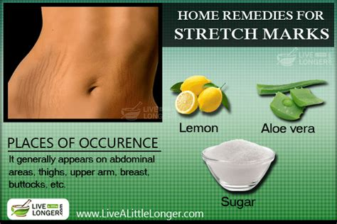 how to get rid of stretch marks fast naturally
