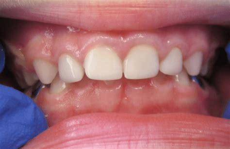 esthetic white crowns vaughan childrens dentistry
