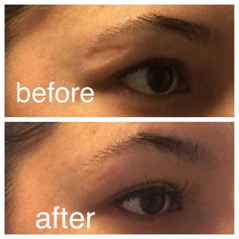 bellafill for results of acne scars bellafill newport beach acne scar reduction orange county