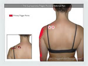 Pec Tear Bench Press Supraspinatus Trigger Points Treating The Stubborn Atus