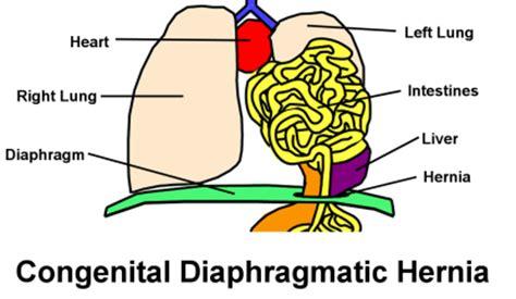 cdh and congenital diaphragmatic hernia awareness volume 1 books april is cdh awareness month april 19th is congenital