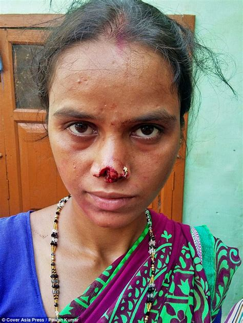 wife haircut indian husband cuts off wife s nose because her family