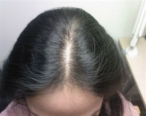 female pattern hair loss and homeopathy does female pattern baldness ever stop the secret of health