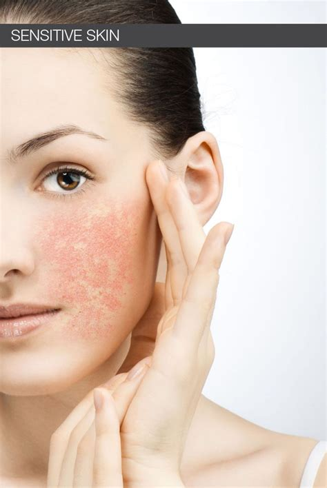 has skin why sensitive skin has become more common these days skin