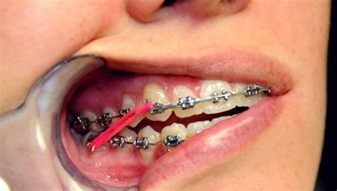rubber band colors for braces what do the elastic rubber bands on braces do ask an