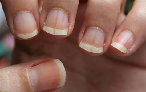 le pour les ongles ongles stri 233 s cause