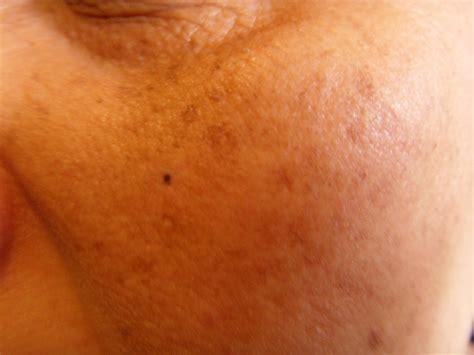 skin problems borinda care skin problems