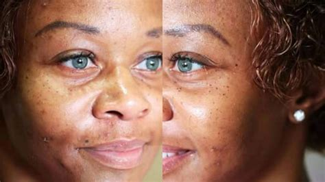 iris color change plastic iris color change surgery brightocular