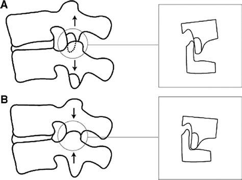 Facet Diagram