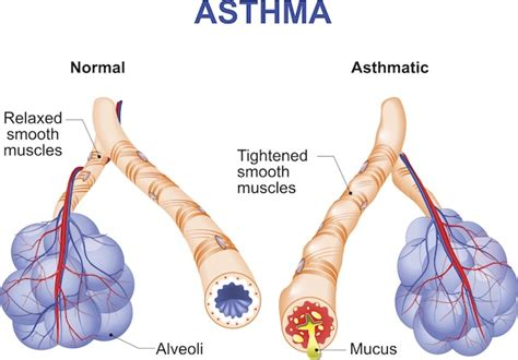asthma diagram best air purifiers for asthma sufferers oransi