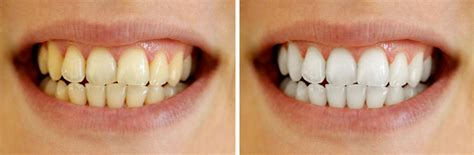 7 Reasons To Get Your Teeth Whitening Procedure Done By A Pro by Is Whitening Bad For Your Teeth