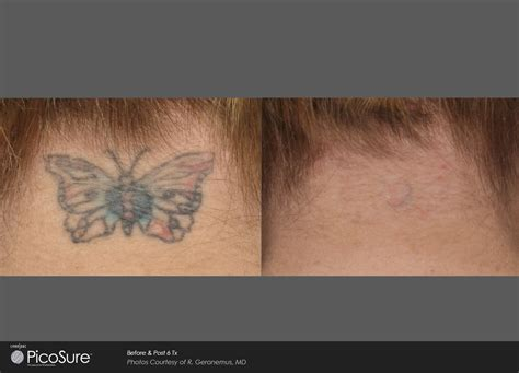 blue ink tattoo removal laser ink picosure laser removal specialists