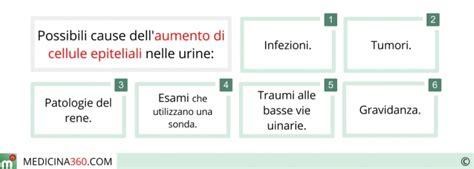 esame microscopico sedimento leucociti eritrociti rari nelle urine levitra 10 mg quanto dura