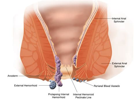 external hemorrhoid treatment hemorrhoid treatment