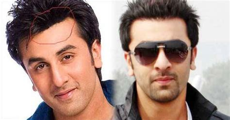 ranbir kapoor hair transplant top 8 bollywood actors who had plastic surgery photos inside
