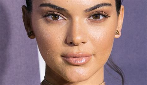actress with acne celebrities with acne open up about the struggle