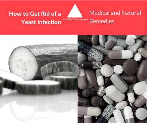 how to get rid of a yeast infection and
