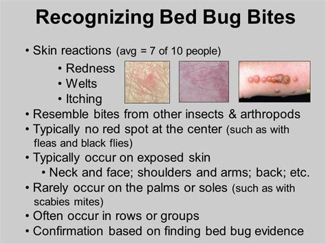 bed bug welts bed bug detection and management in schools dr ppt video online download