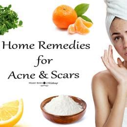 Effective Home Remedies For Acne by Faces Magneteyes Kajal Review Swatches Price