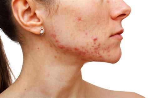 Penyakit Kulit Parasit Pada penyakit ini menimbulkan bintik merah pada kulit dan