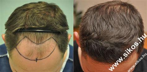 merica mexico hair transplant average cost of fue hair transplant om hair