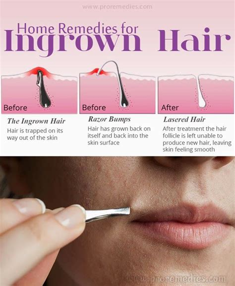 how to treat an ingrown chin hair home remedies for ingrown hair useful tips pinterest