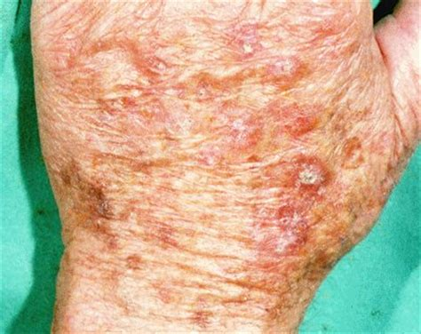 actinic keratosis advanced dermatology