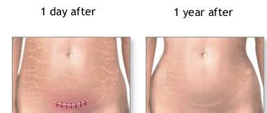 c section scar revision before and after c section scar pictures recovery time healing