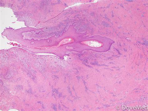 pilonidal cyst histology pilonidal cyst