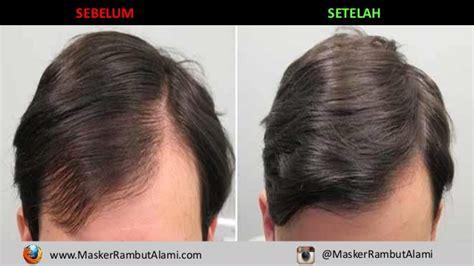 Masker Rambut Nature hp 0856 4369 9889 masker rambut untuk rambut kering