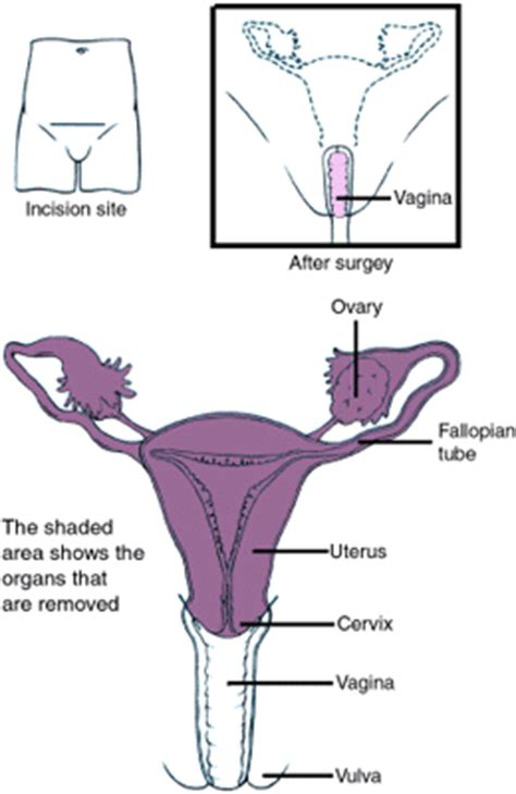 hysterectomy diagram well being for hysterectomy