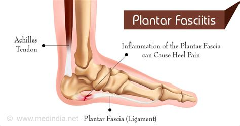 What Is Planters Fasciitis by What Is Plantar Fasciitis Healthandholidays